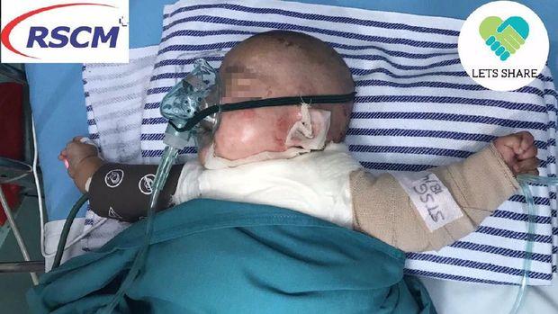 Bayi Dilan menghabiskan Rp 70 juta untuk operasi luka bakar yang dialaminya.