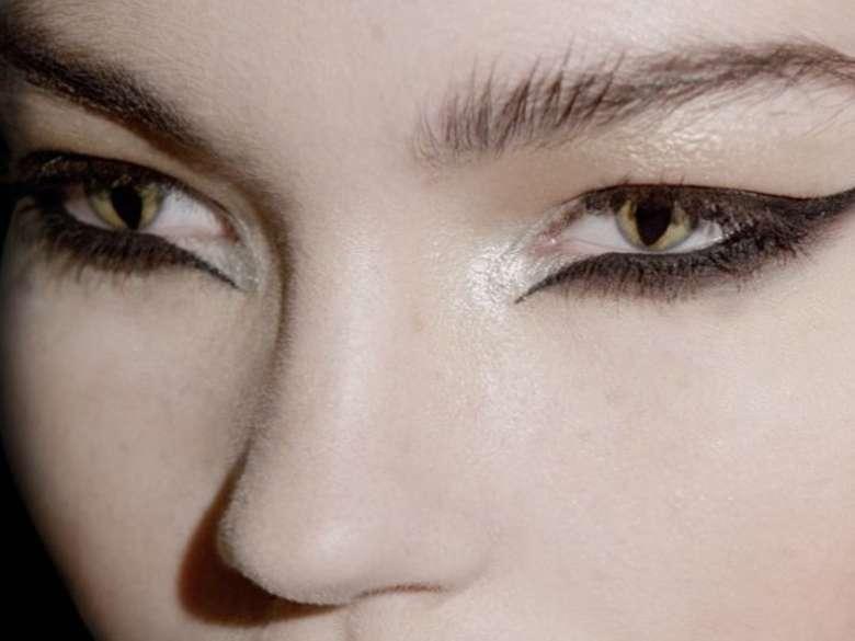 Pada orang dengan CES ada jaringan yang absen di mata sehingga bagian pupil berwarna hitam dapat terdorong keluar memberikan penampilan seperti mata kucing. (Foto: Instagram/anasiqueiramua)