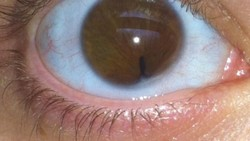 Cat Eye Syndrome (CES) adalah kondisi langka akibat kelainan genetik. Orang yang memilikinya dapat memiliki pupil mata seperti kucing.