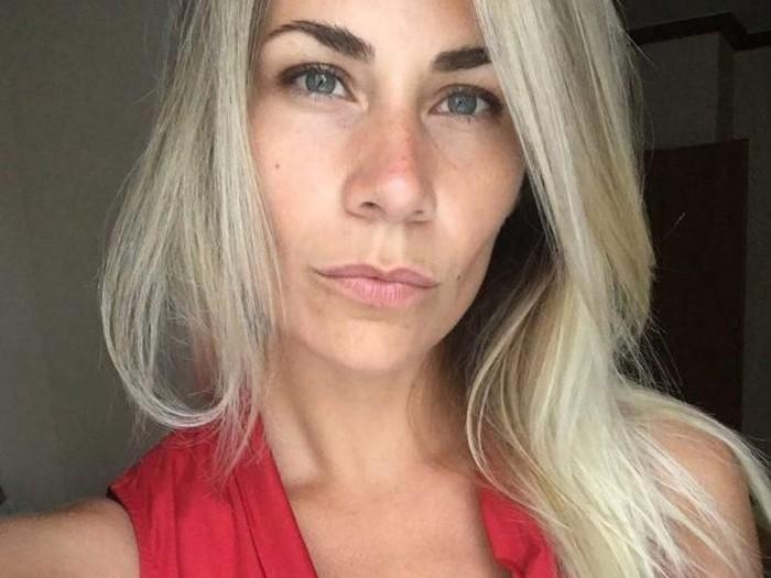 Ekaterina Keselova meninggal saat operasi pengencangan payudara.Foto: Istimewa