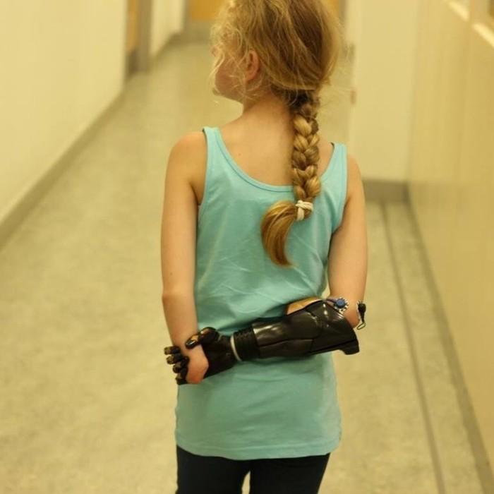 Tangan bionik bisa bergerak dengan membaca sinyal yang dipancarkan oleh penggunanya. (Foto: Instagram/openbionics)