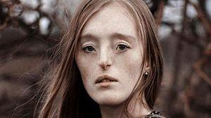 Tersentuh Foto-foto Indah Wanita yang Terlahir dengan Bibir Sumbi   ng