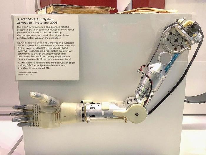 Contoh model awal tangan bionik. Ketika pertama kali dikembangkan tangan bionik masih berat dan tidak efisien. (Foto: Instagram/medicalmuseum)