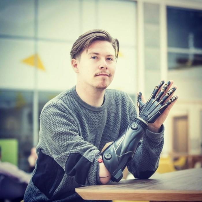Sinyal yang dibaca tangan bionik beragam mulai dari gerakan otot hingga aktivitas elektrik di saraf. (Foto: Instagram/openbionics)