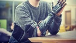 Tangan bionik diciptakan untuk mengembalikan fungsi dari tangan manusia. Berbeda dari tangan palsu biasa, tangan bionik menggunakan teknologi robot.