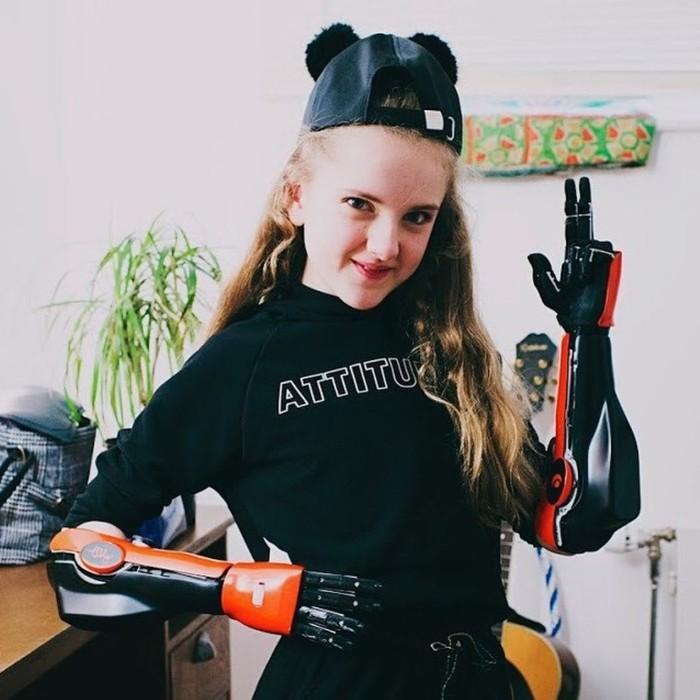 Tangan bionik bisa digunakan di dua tangan sekaligus. (Foto: Instagram/openbionics)