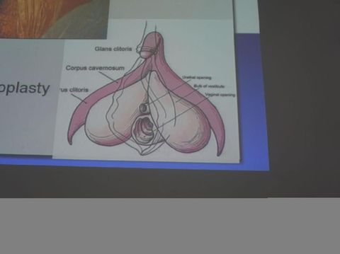 Anatomi organ untuk prosedur 'Male to Female'.