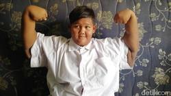 Curhat Aria Permana Obesitas Hingga 192 Kg