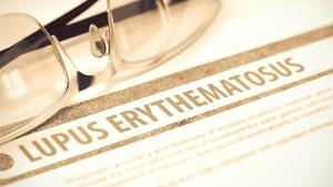Dokter: Penyakit Lupus Bisa Menyerang dari Ujung Rambut Hingga Kaki