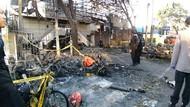 Adik Evan Korban Bom Gereja Surabaya Masih Kritis, Kaki Diamputasi