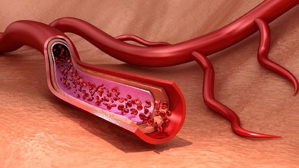 6 Penyebab Penyumbatan Darah pada Jantung Seperti Dialami Arief Rivan