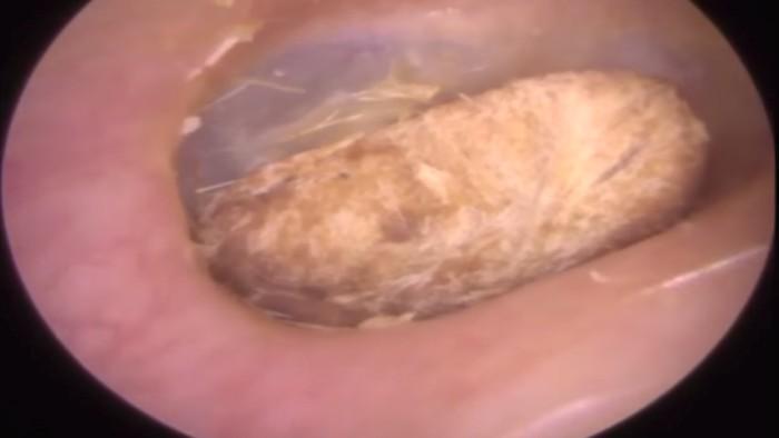 Seorang pria di Leicestershire, Inggris, ditemukan dengan kondisi kapas cotton bud tersangkut di telinga. (Foto: Youtube/Caters Clip)