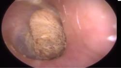 Ada alasan kenapa cotton bud tidak disarankan oleh dokter untuk membersihkan telinga. Foto-foto ini jadi contoh buktinya.