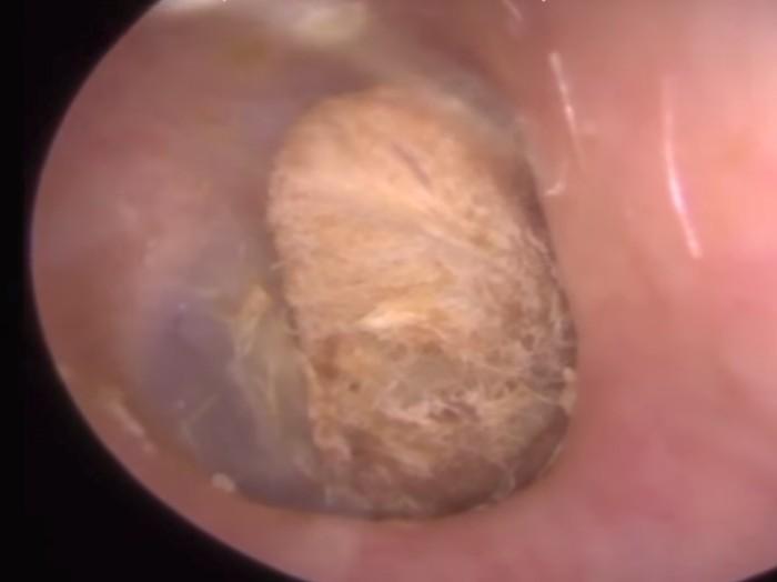Cotton bud ini sudah dua tahun tersangkut di telinga. (Foto: Youtube/Caters Clip)