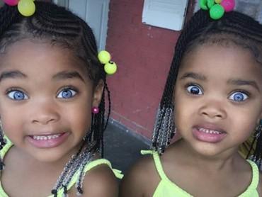 Kedua mata Megan berwarna biru sedangkan Morgan memiliki dua warna mata, hitam dan biru. (Foto: Instagram @megan_morgan_trueblue)