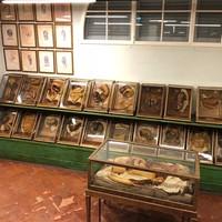 Beragam koleksi anatomi manusia di sini, ada yang perutnya terbuka, kepala tanpa kulit, potongan organ seperti jantung dan hati, dan lainnya. (gally76/Instagram)