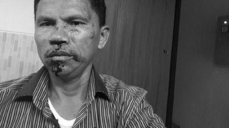 Pengeroyokan Hitler, Polisi Tetapkan 2 Anggota FPI Tersangka