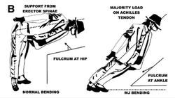 Dokter Ungkap Rahasia Gerakan Dansa Michael Jackson