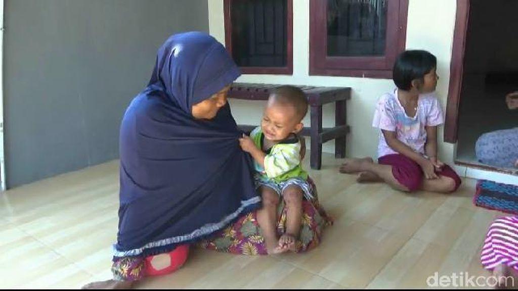 Puluhan Anak di Purwakarta Diduga Terjangkit Virus Flu Singapura