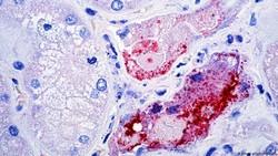 Dikhawatirkan Jadi Pandemi Baru, Bagaimana Cara Penularan Virus Nipah?