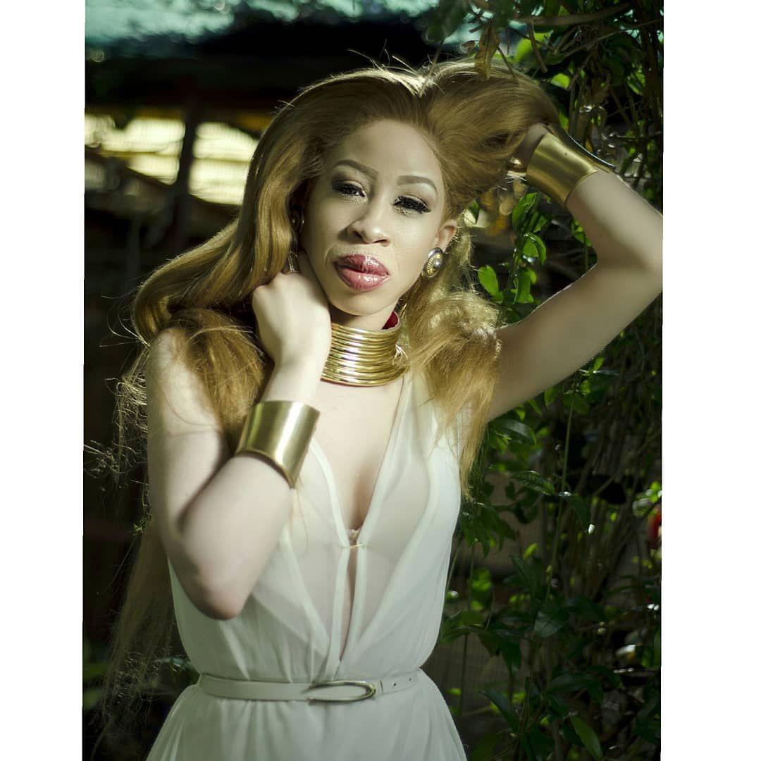 model albino