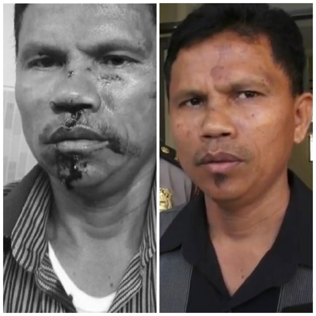 Before After Wajah Hitler yang Dikeroyok Gegara Pesawat Pengintai