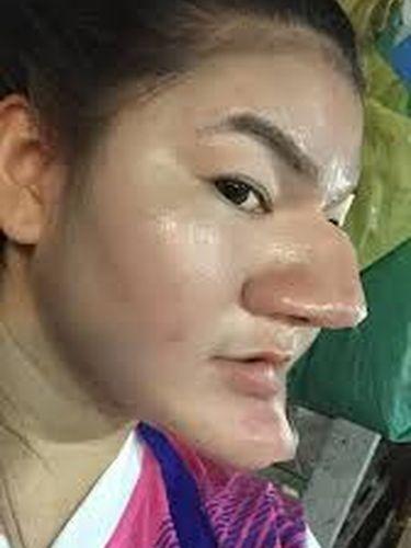 Wanita Ngaku Oplas Hidung Mirip Nenek Sihir, Fakta Sebenarnya Terungkap