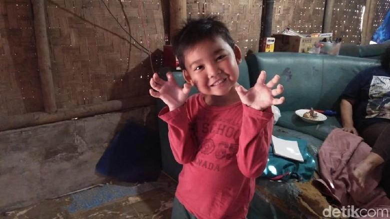 Foto: Senyum Ceria Alif, Bocah di Tangerang yang Viral