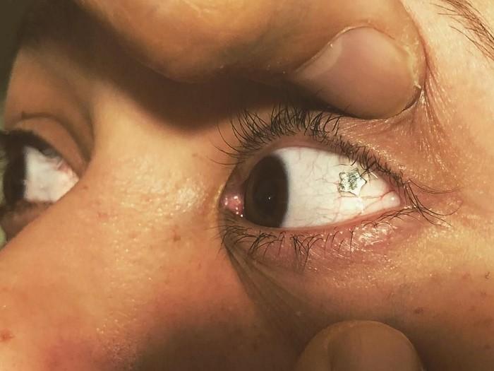 Luka sayatan saat menanam perhiasan mata tidak perlu dijahit karena akan sembuh sendiri. (Foto: Instagram/emilchyn)