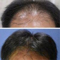 Peneliti Terkejut Ada Metode Yang Cepat Menumbuhkan Rambut
