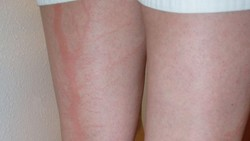 Kalau kamu termasuk orang yang beruntung bisa selamat dari sambaran petir, ada kemungkinan tubuhmu akan memiliki luka bakar langka dengan pola unik.