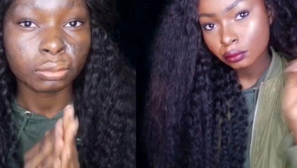Alami Luka Bakar, Gadis Ini Jadi Viral Karena Kemampuan Make Up-nya