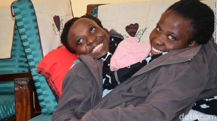 Si kembar siam Maria dan Consolata Mwakikuti. Foto: CNN