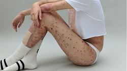 Seringkali kita melihat kulit yang mulus sebagai makna sempurna. Seorang model asal London yang idap epidermolysis bullosa membuktikan bahwa hal itu salah.
