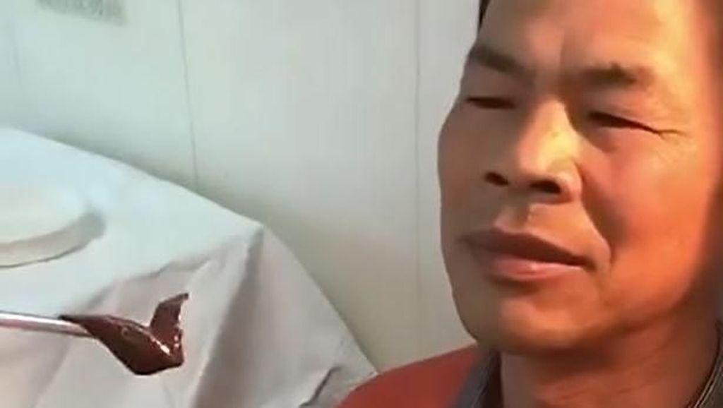 Mimisan 10 Hari Nonstop, Ternyata Ada Lintah Hidup di Hidung