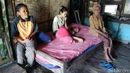 Tolong! Penderita Kanker Tulang di Purworejo Ini Butuh Bantuan