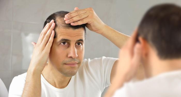 Sepanjang hidup kita, jumlah rambut yang kita miliki berfluktuasi. Rambut yang lebih tebal dan sehat adalah hal umum selama kehamilan. Rambut yang rontok juga dapat terjadi mendekati masa menopause. (Foto: Ilustrasi/Thinkstock)