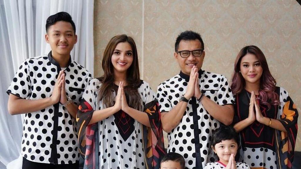 Foto Bareng Keluarga, Kaki Aurel Hermansyah Jadi Sorotan