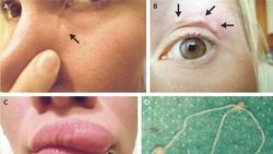Benjolan Misterius di Wajah Wanita Cantik Ini Ternyata Cacing Parasit