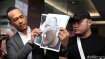 Korban Dugaan Penganiayaan Herman Hery Sudah Visum Ditemani Polisi