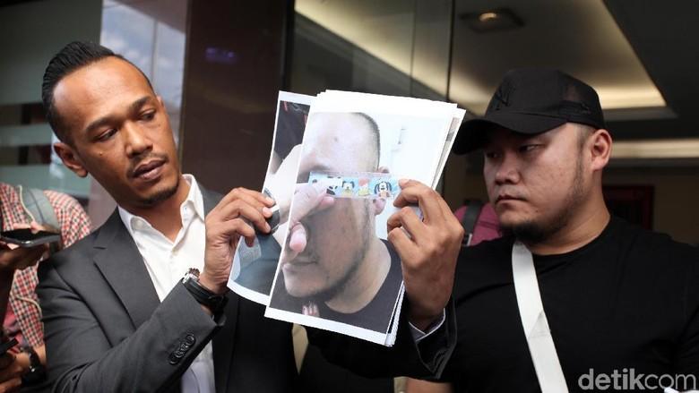 Korban Tuduhan Penganiayaan Herman Hery Sudah Visum Ditemani Polisi