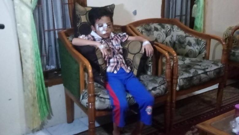 Bocah Rafa Korban Pelemparan Batu Sudah Bisa Melihat dan Bicara