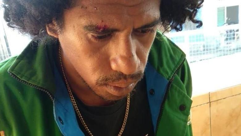 Polisi Jamin Konstantinus Pemerkosa Turis Prancis Diproses Serius