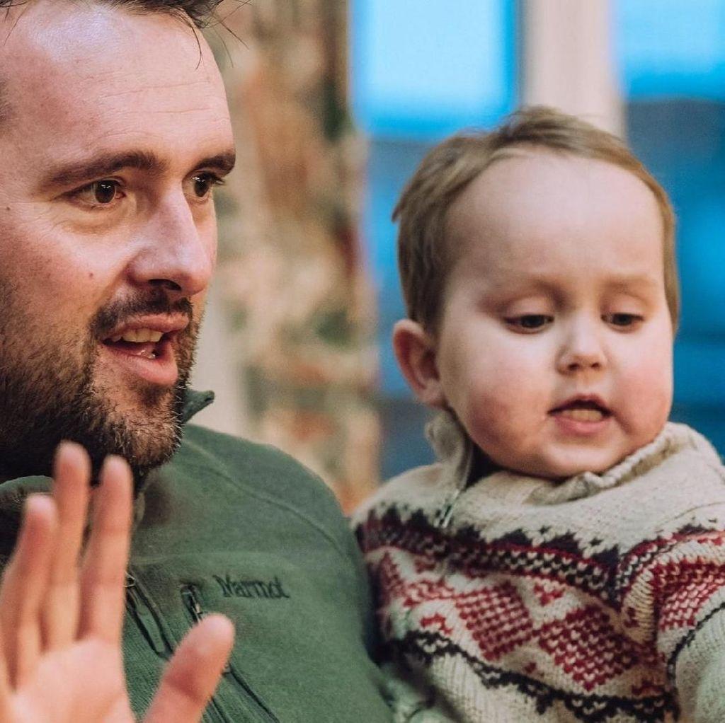 Teknologi Cetak 3D Bantu Transplantasi Ginjal Bocah 3 Tahun