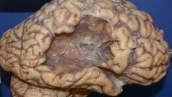 Stroke terjadi ketika aliran darah ke otak terganggu apakah karena sumbatan atau perdarahan. Kalau penasaran seperti apa penampakannya intip gambar berikut.