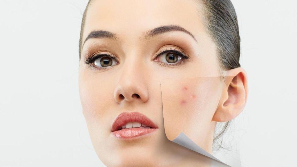 Kosmetik Jadi Faktor Terbanyak yang Buat Wanita Berjerawat