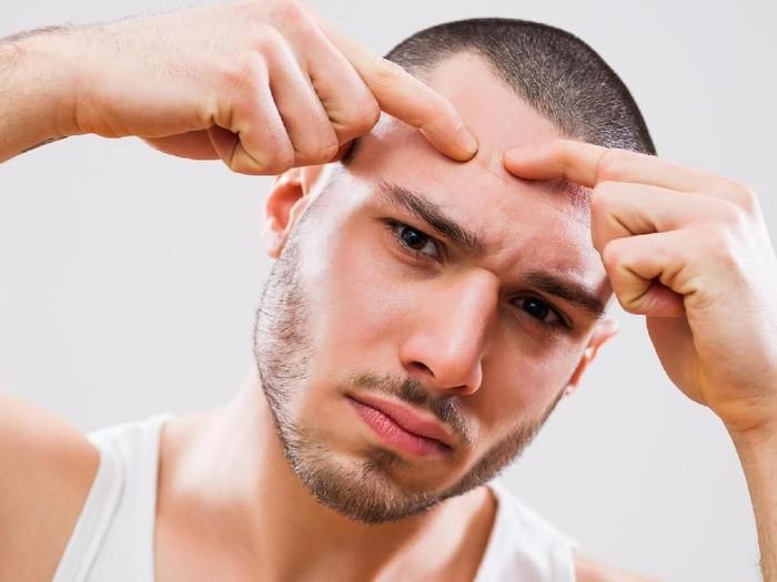 Penyebab pria berjerawat. Foto: Thinkstock