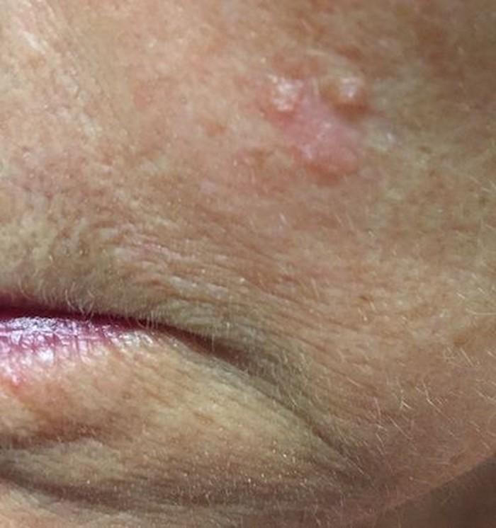 Kondisi bernama actinic keratosis memiliki ciri-ciri kulit yang kasar dan bersisik karena paparan sinar matahari. Kondisi ini bila dibiarkan bisa berkembang menjadi kanker terutama SCC. (Foto: Skin Cancer Foundation)