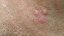 Kanker kulit ada beberapa macam jenis. Kenali ciri-ciri tiap jenis kanker tersebut sehingga kamu bisa tidak keliru dengan tahi lalat biasa.