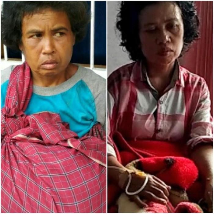 Sosok wanita yang disebut mirip Nining (kiri) saat dirawat di Panti Aura Welas Asih Sukabumi, sedangkan di sebelah kanan adalah kondisi Nining saat ini (Foto: dok Istimewa)